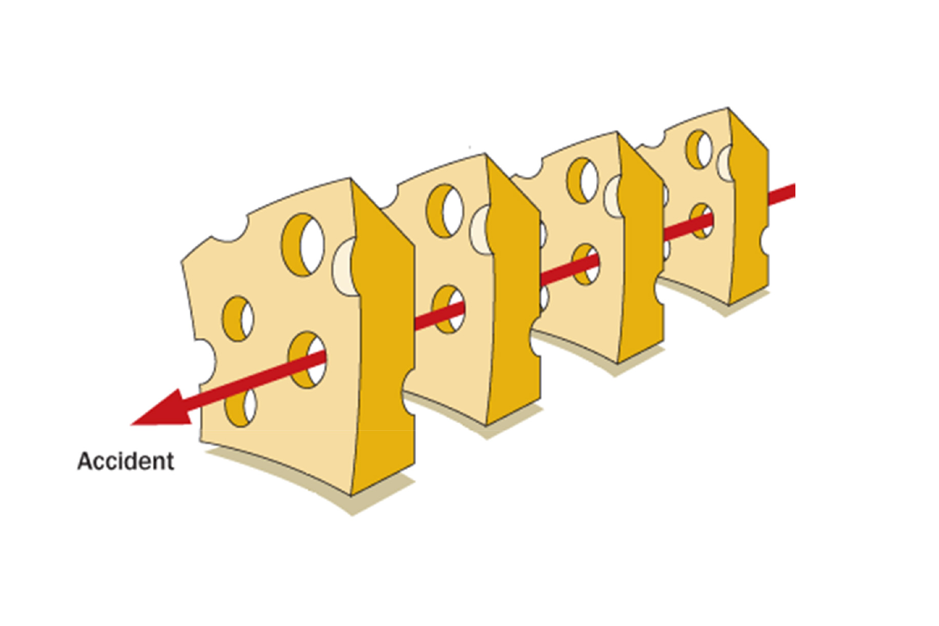 Eventi avversi nel blocco operatorio: tra teoria e realtà